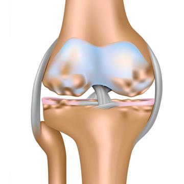 3. artroza artroza nevertebrala