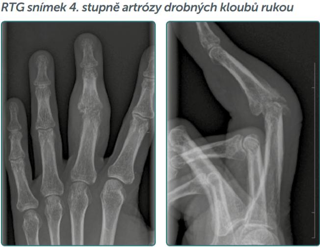 artróza 2 stupně léčba