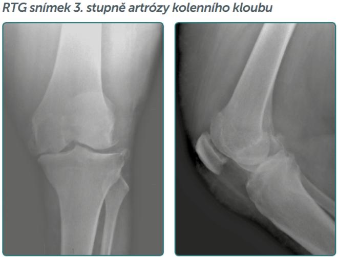 artróza kolene léčba